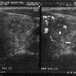 甲状腺腫瘍 エコー検査画像-04